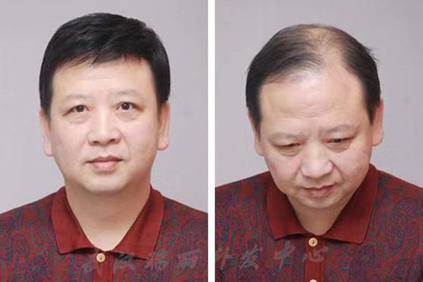 福州增发哪家好来为你揭秘头发干枯毛躁的原因