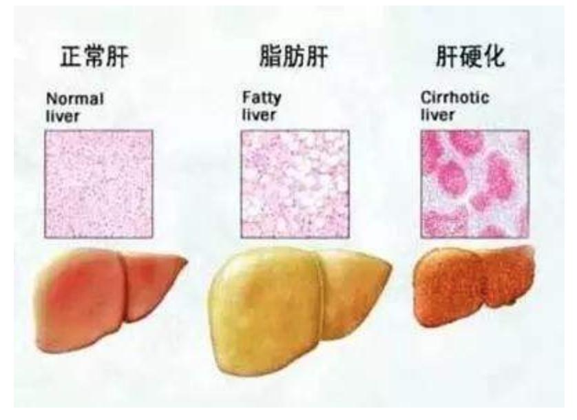 自体干细胞肝病:给肝病肝硬化患者治愈带来新希望!