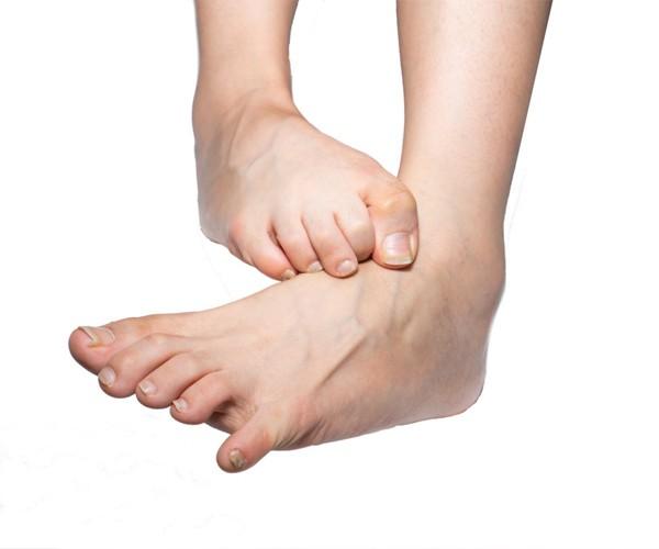 趾间型脚气