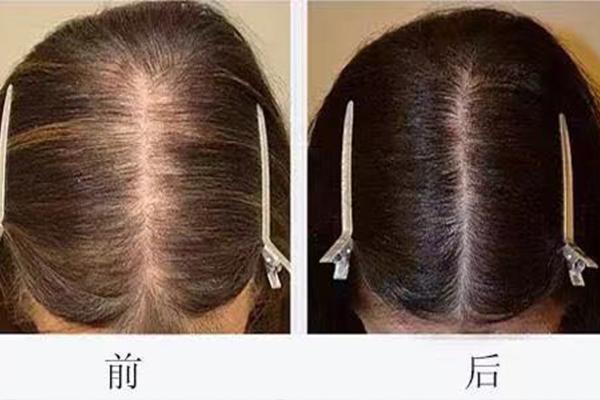 福州织发机构与你浅谈常见的头发问题有哪些