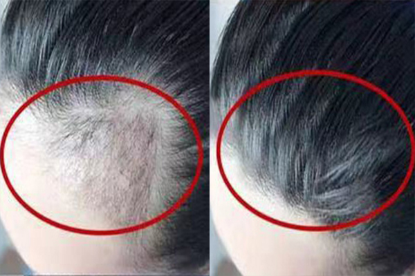 福州织发机构来聊下选择一款好的织发,有多重要?