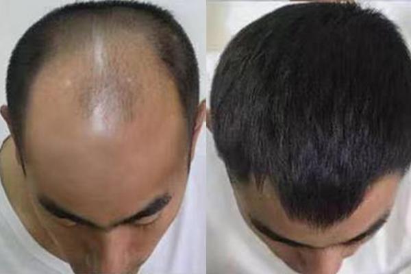 福州假发中心与你分享使用隐形发需要注意的事项