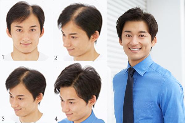福州雅黛增发告诉你假发与增发的区别