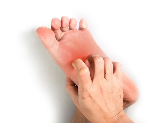 鳞屑角化型脚气