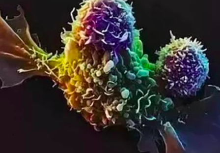 NK细胞免疫疗法有望治愈更多癌症患者