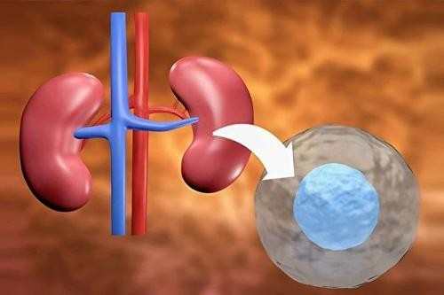 【科研进展】干细胞肾病获突破性进展,改善肾功能效果显著
