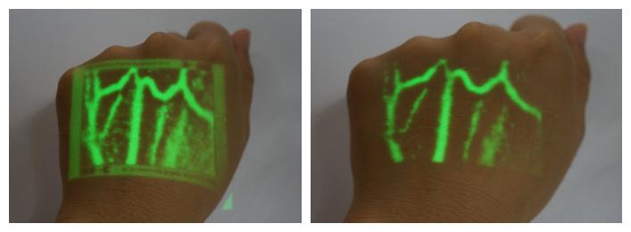 血管显像仪VE-40