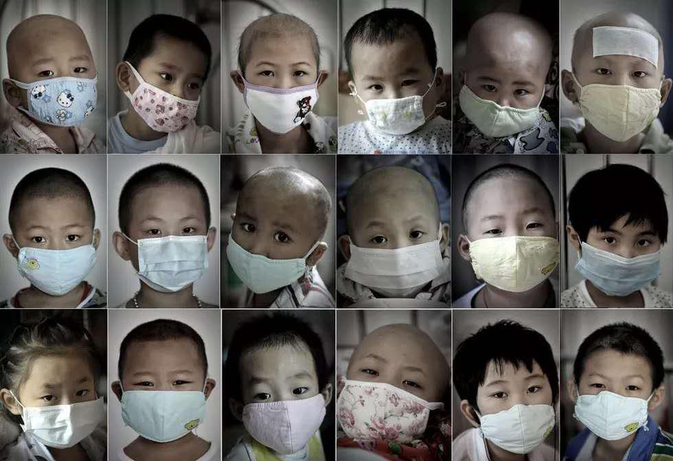 婴儿甲醛中毒的几种表现?