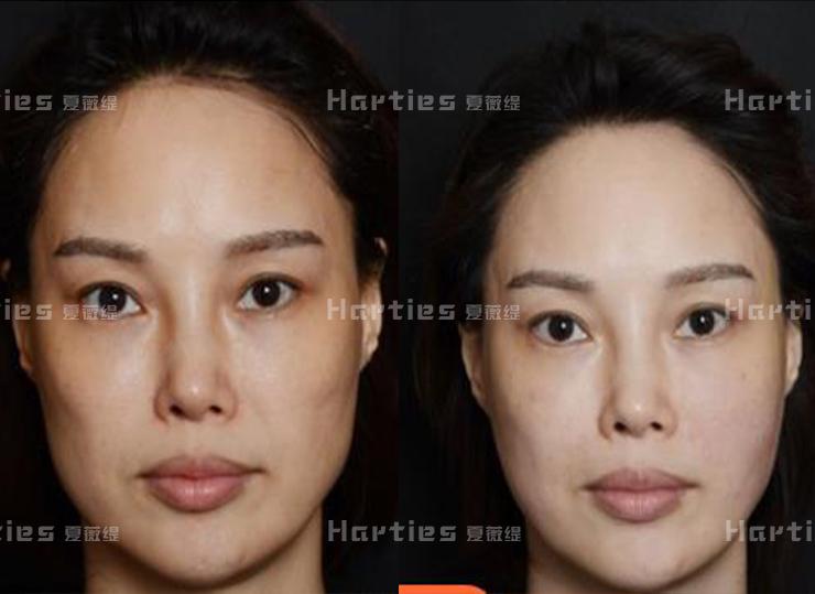 来说说干细胞玻尿酸对于美容护肤会起到哪些作用