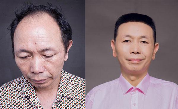 来了解下福州假发跟织发有哪些区别?