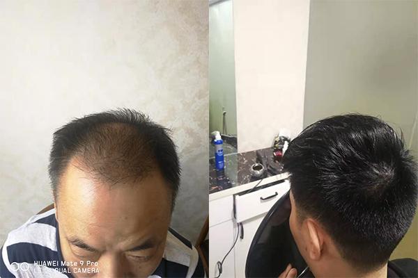 福州补发来讨论下常见的脱发类型有哪些?你目前是属于哪种情况呢?