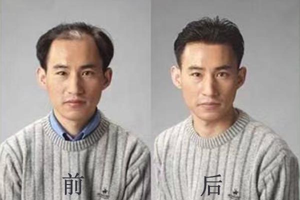 福州假发机构谈谈哪里可以定制假发的?