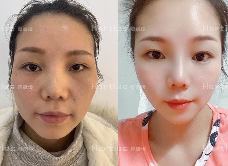 干细胞对于美容护肤会起到什么作用呢