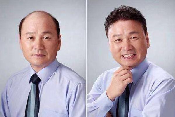 浅析头顶局部没头发可以做福州织发补发吗?