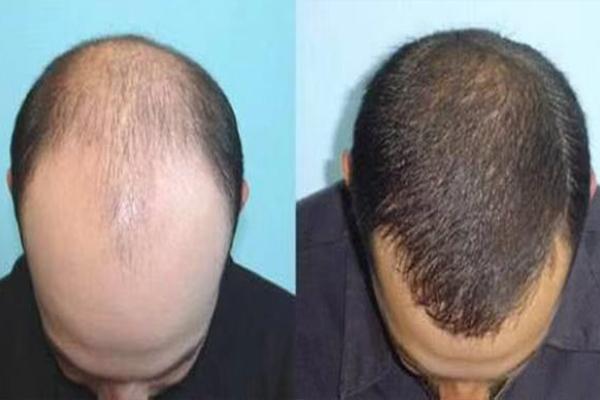 假发店浅析头发秃顶的原因有哪些